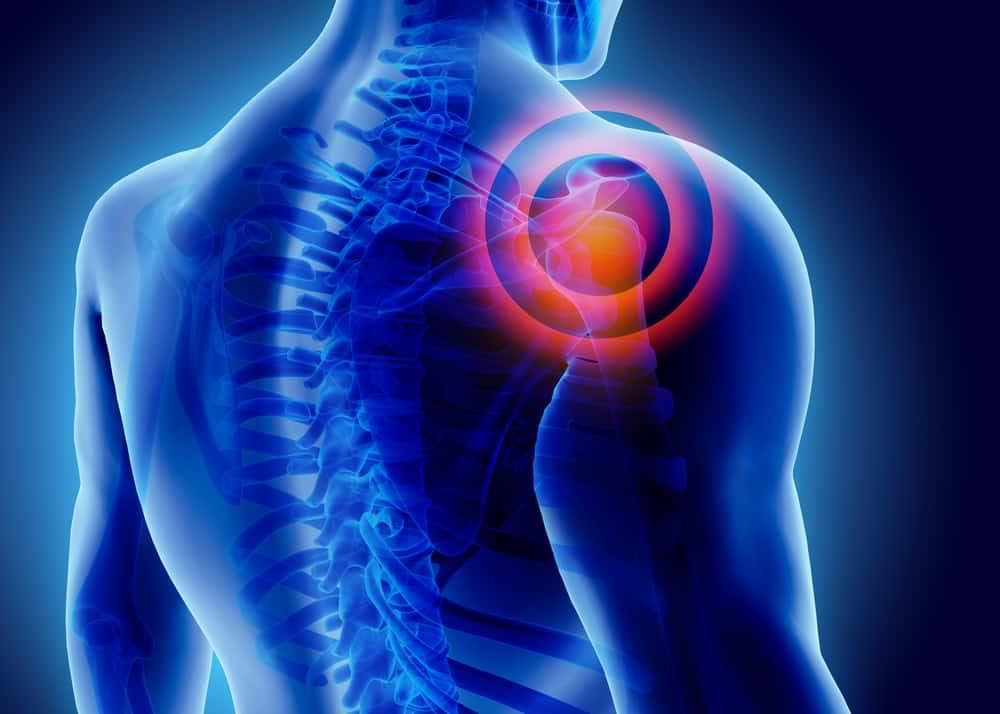 Shoulder Injury 2